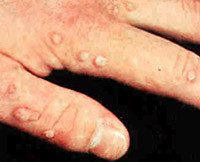 causes of warts on feet