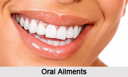 Oral Ailments, Naturopathy