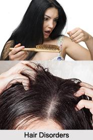 Hair Disorders, Naturopathy