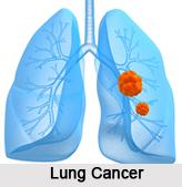Cancer, Naturopathy