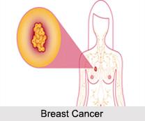 Female Diseases, Naturopathy