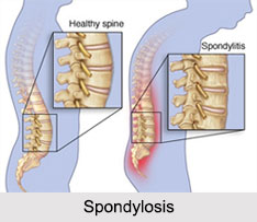 Spondylosis, Joint and Muscle Ailment