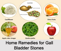 Gall Bladder Stones, Naturopathy