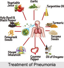 Pneumonia, Chest Ailment