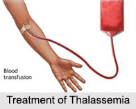 Thalassemia, Blood Related Ailment