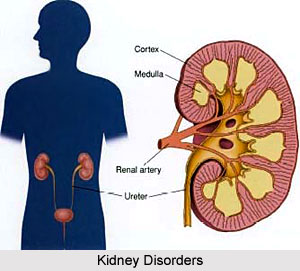 Types of Kidney Disorders