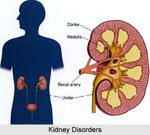 Types of Kidney Disorders
