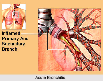 Yoga for Bronchitis, Yoga and Health