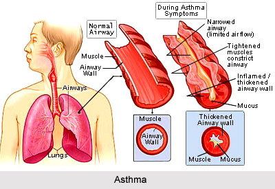 and Asthma