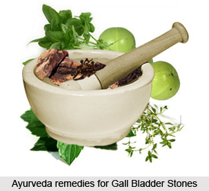 Treatment of Gall Bladder Stones