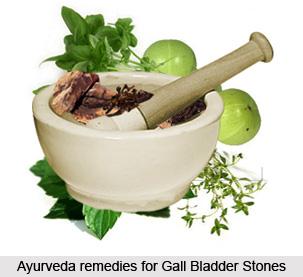 Treatment of Gall Bladder Stones