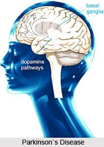 Symptoms Of Parkinson S Disease