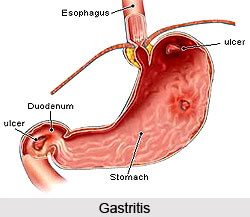 What Can You Give A Dog For Gastritis