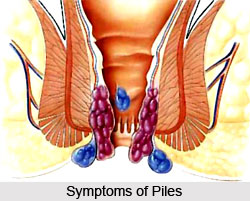 Symptoms of Piles