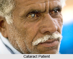 Treatment of Cataract