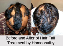 Homeopathic Treatment of Hair Fall