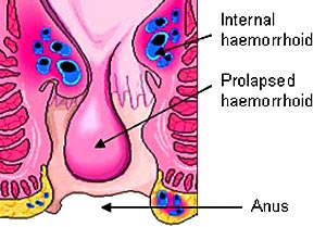 prolapsed haemorrhoid