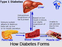 Diabetes Mellitus, Madhumeha