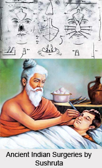Ancient Indian Surgery, Ancient Literature of Ayurveda