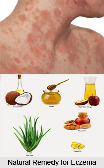 Natural Remedy for Eczema, Indian Naturopathy