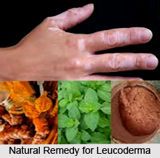 Natural Remedy for Leucoderma, Indian Naturopathy