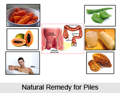 Natural Remedy for Piles, Indian Naturopathy