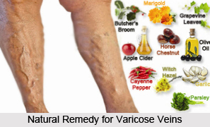 Natural Remedy for Varicose Veins, Indian Naturopathy