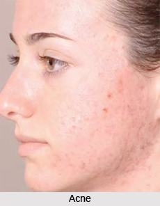 Natural Remedy for Acne, Naturopathy