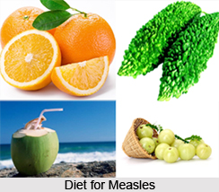 Natural Remedy for Measles, Naturopathy