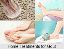 Natural Remedy for Gout, Indian Naturopathy