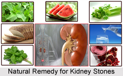 Natural Remedy for Kidney Stones, Indian Naturopathy