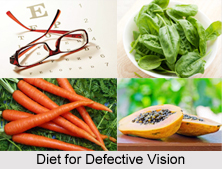 Natural Remedy for Defective Vision, Indian Naturopathy