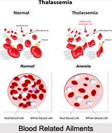 Blood Related Ailments, Naturopathy