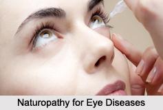 Naturopathy for Eye Diseases, Indian Naturopathy