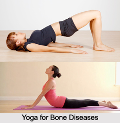 Yoga for Bone Diseases, Yoga