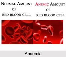 Anaemia, Naturopathy