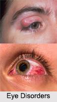 Eye Disorders, Naturopathy