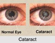 Cataract, Eye Disorder