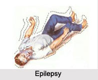 Epilepsy, Neurological Disorder