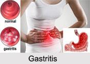Gastritis, Stomach Ailment