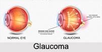 Glaucoma, Eye Disorder