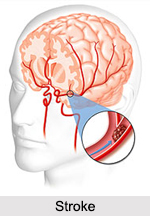 Stroke, Neurological Disorder