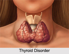 Thyroid Disorder, Female Disease