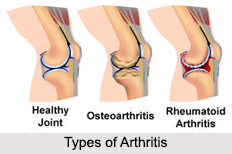 Types of Arthritis, Bone Ailment