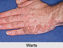 Warts, Skin Disorder