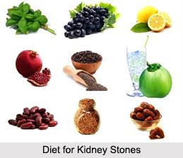 Kidney Stones, Kidney Disorder