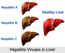 Liver Disorders, Stomach Ailment