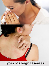 Allergic Diseases, Naturopathy