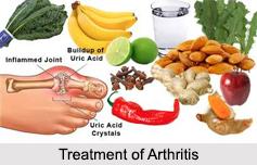 Arthritis, Bone Ailment