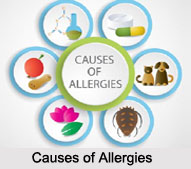 Causes of Allergies, Naturopathy